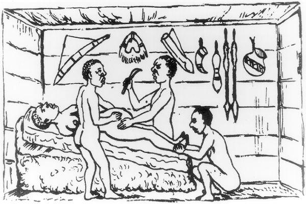 A császármetszés története